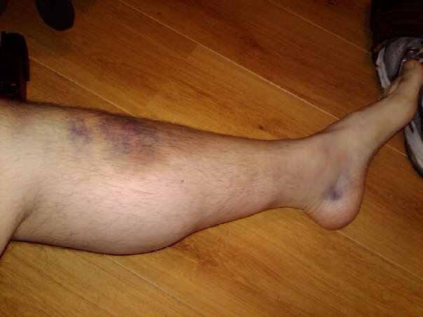 left leg, massive bruise on shin, pooled blood next to heel